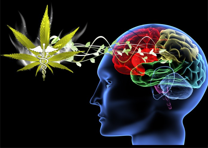 Research Shows That Cannabis Can Be Effective for Concussion Treatment
